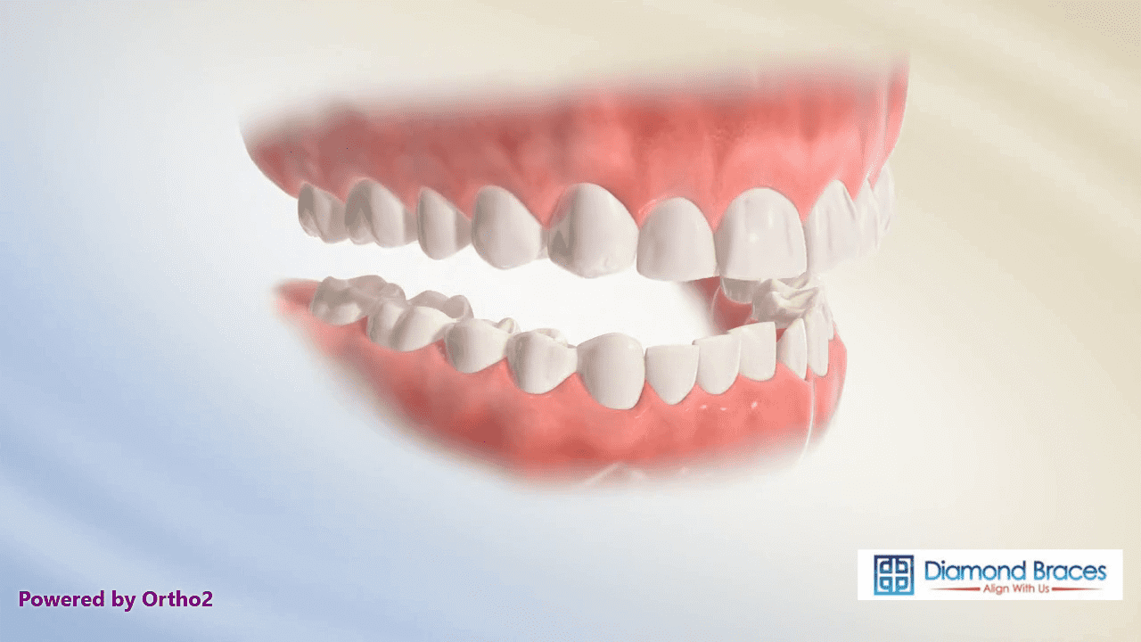 Teeth my bottom why feel tight do Tight Jaw: