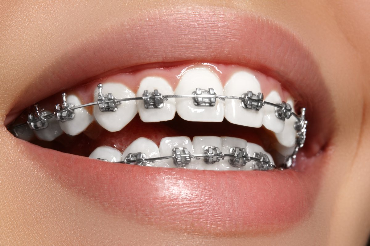 Woman smiling while wearing braces before teeth relapse