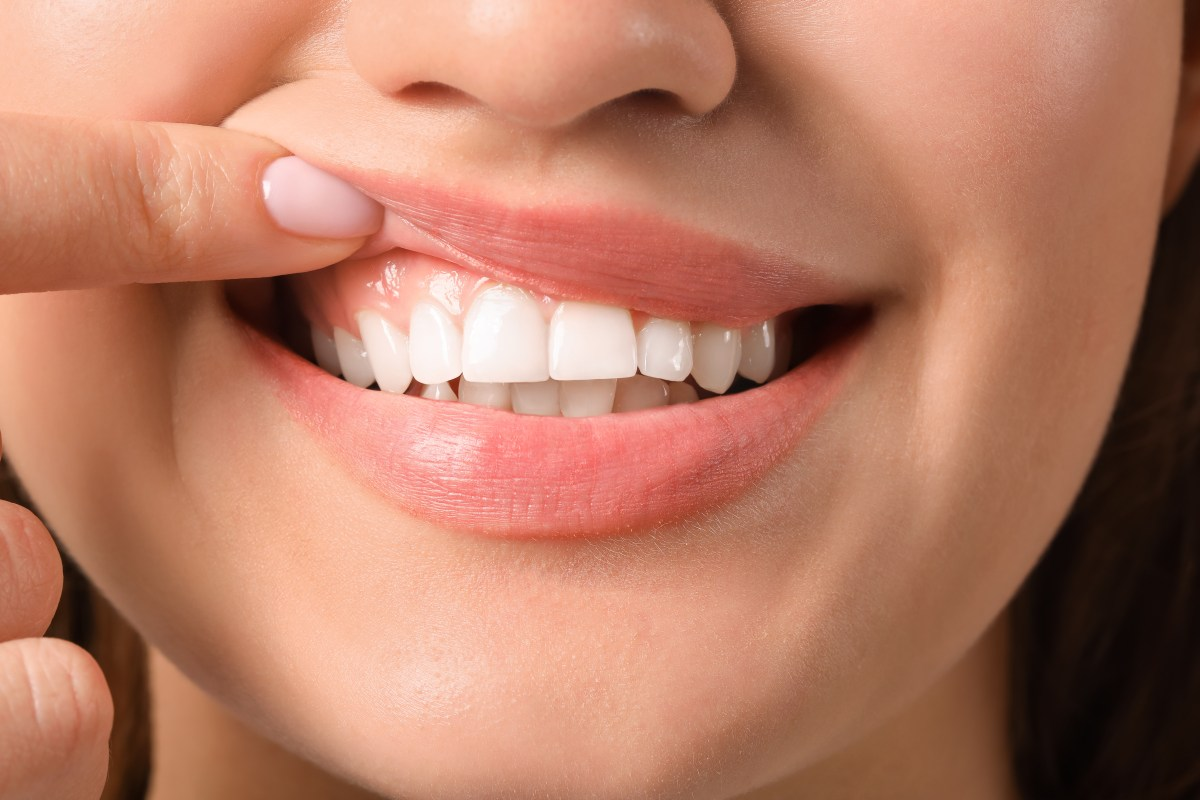 Woman with healthy gums smiling after clear aligner therapy.