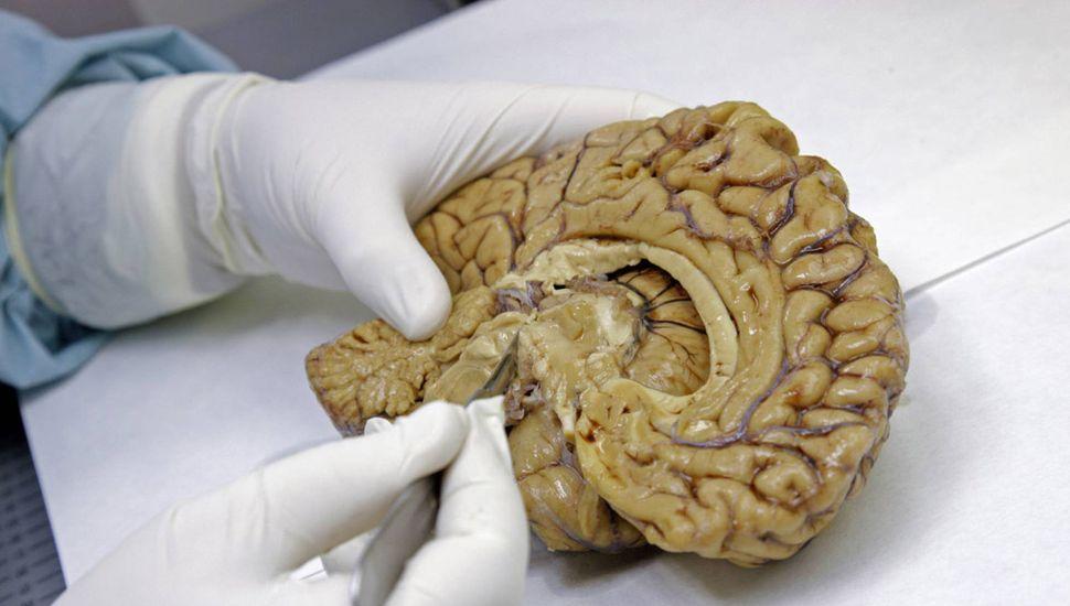 Descubren una forma de frenar  el cáncer cerebral más letal