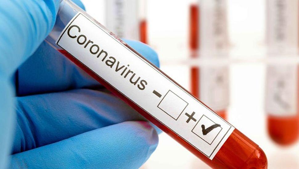 Dos juninenses más dieron positivo de coronavirus y se encuentra internados