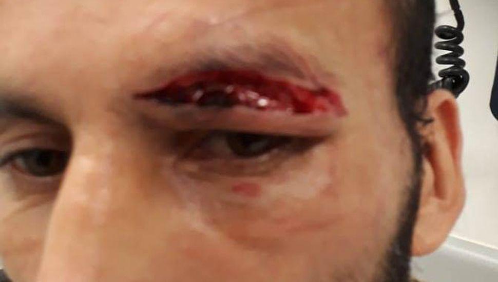 Julián Aristule sufrió cortes de consideración sobre su ojo izquierdo, por cabezazos de Ángel Rodríguez, y debió ser atendido por médicos.
