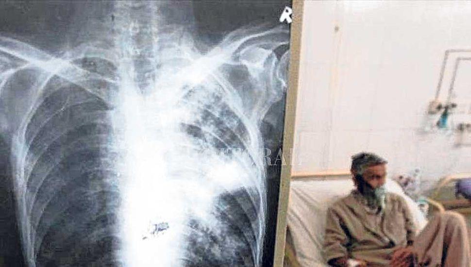 La tuberculosis multirresistente tiene una tasa de mortalidad de 50%.
