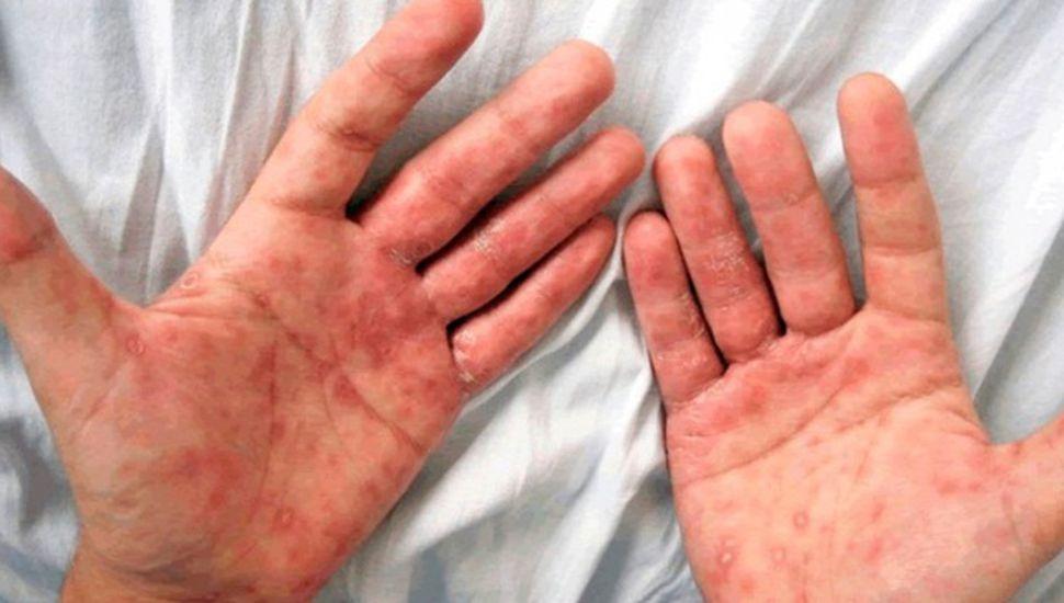 Realizan campaña de prevención y detección de sífilis