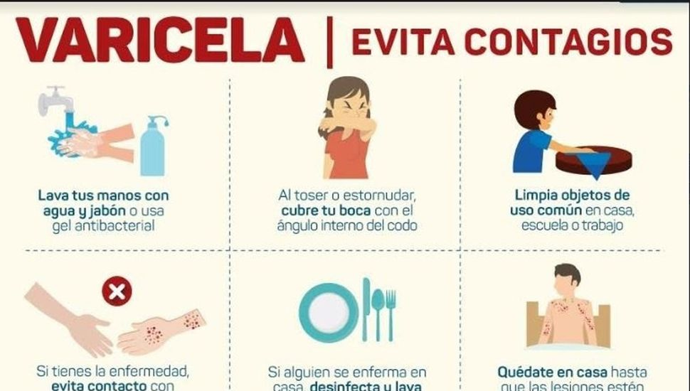 Medidas de prevención y control de la varicela