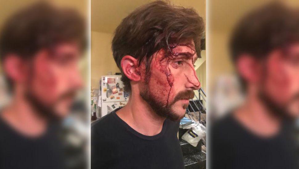 Amenaza de muerte y golpes a un concejal kirchnerista