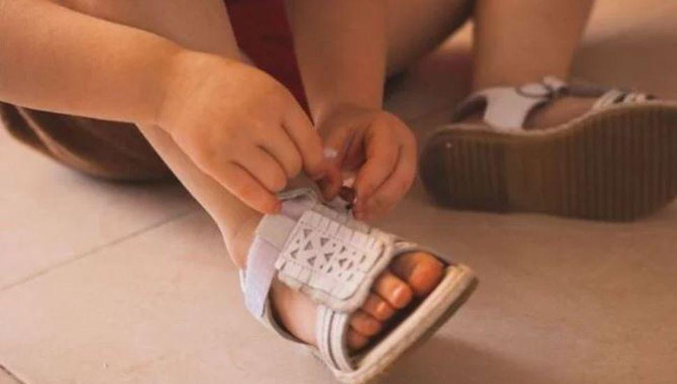 Una nena contrajo una peligrosa infección al probarse zapatos sin medias