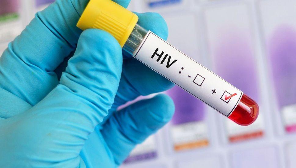 Confirmaron el segundo caso de curación del VIH en el mundo