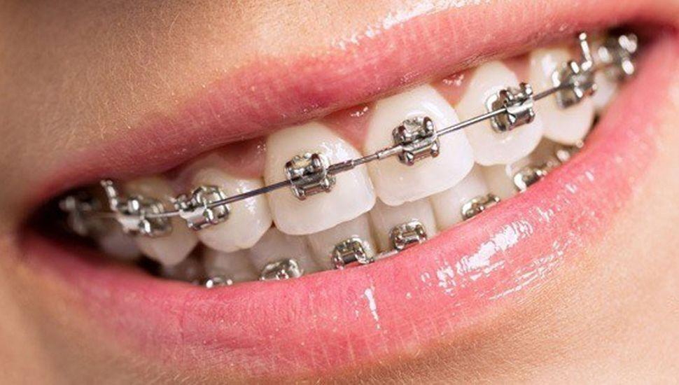 Desarrollan un sistema de ortodoncia que reduce los tiempos de tratamiento