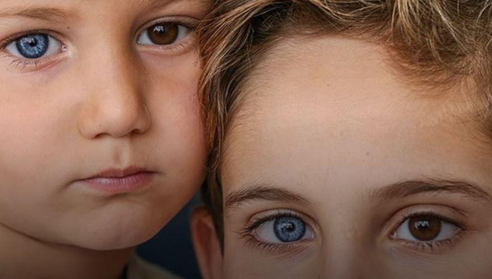 El extraño caso de los hermanos que nacieron con un ojo de cada color