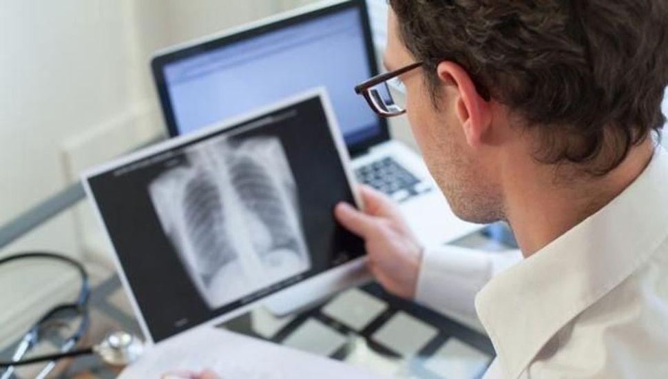 La tuberculosis es una enfermedad altamente contagiosa que puede causar la muerte.