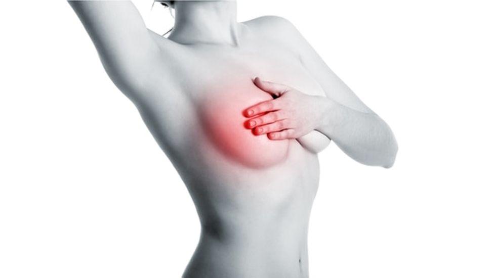 Una nueva terapia para un tipo de cáncer de mama que no tenía tratamiento ya está en Argentina