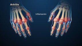 Los Remedios Caseros con Martin Vera; Artritis
