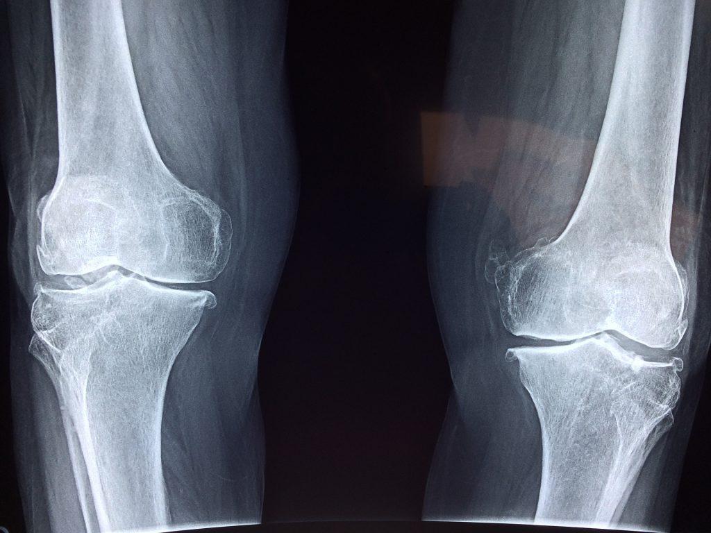 Le lithothamne a prouvé son efficacité dans les troubles articulaires.