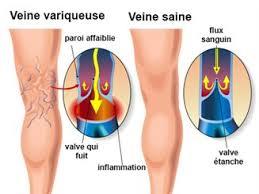 Insuffisance veineuse ou jambes lourdes : cette affection peut être soulagée par l'alimentation.