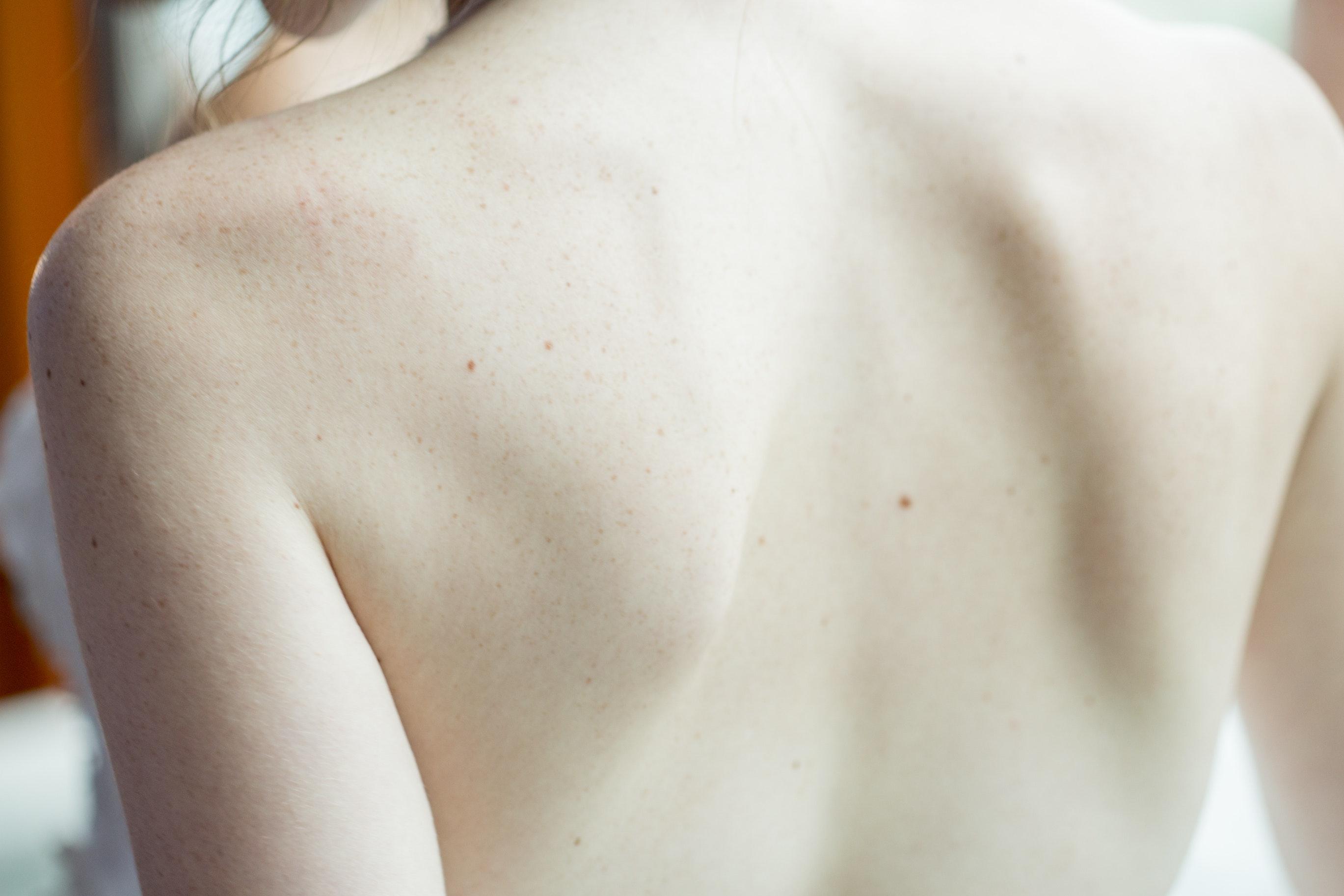 Dos: la réflexologie plantaire permet de traiter le mal de dos.