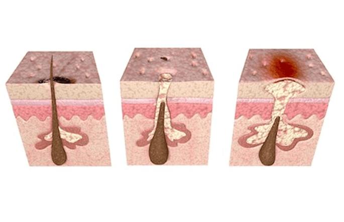 Schéma représentant l'excès de sébum sous la peau.