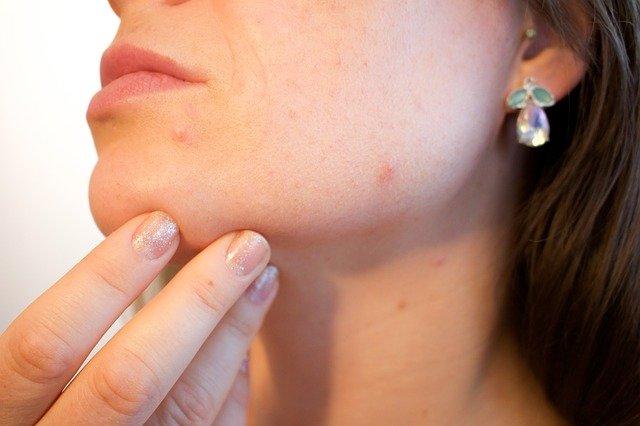 Femme présentant un furoncle: quel traitement naturel?