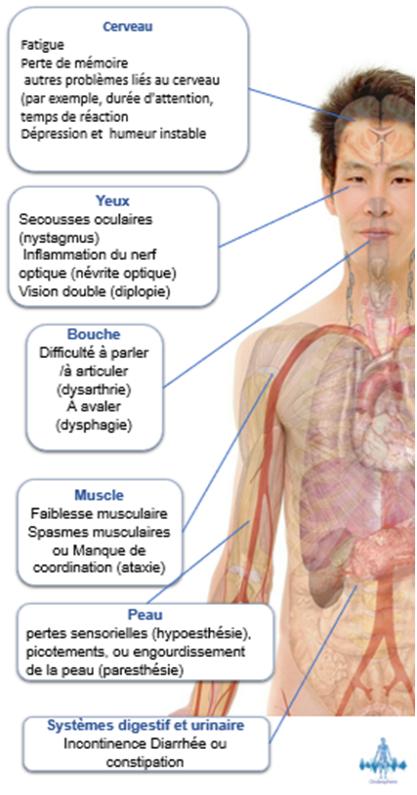Schéma représentant les symptômes de la sclérose en plaques.