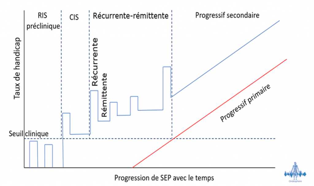 Schéma représentant la progression de la sclérose en plaques.