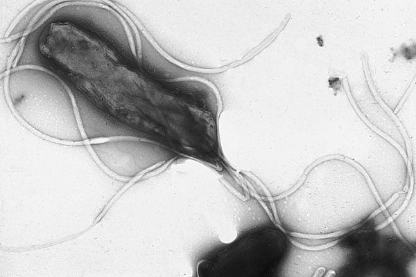Helicobacter Pylori : traitement naturel et causes de cette inflammation.