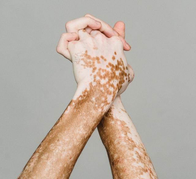 Vitiligo sur les mains : causes et traitement naturel.