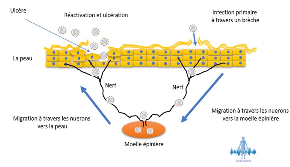 Schéma représentant l'infection par le virus de l'herpès génital, HSV-2.