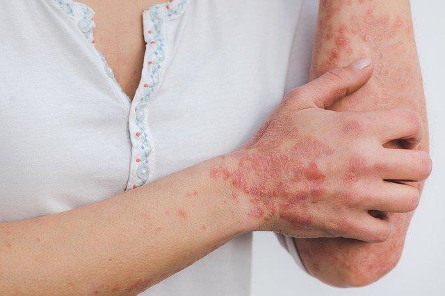 Femme souffrant d'une inflammation de la peau : quelle plante anti-inflammatoire choisir?
