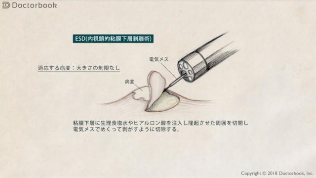 ESD(内視鏡的粘膜下層剥離術)とは