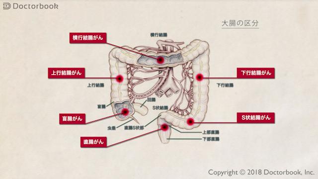 大腸がんの概要