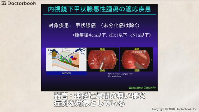 が ん 甲状腺