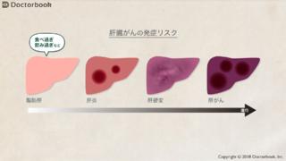肝がんの概要