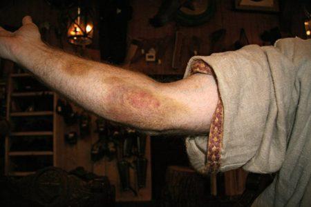 Dies ist, was passieren kann, haben Sie keine Handgelenk tragen zu schützen!