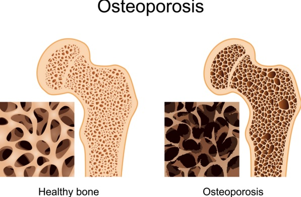 How To Prevent Osteoporosis Naturally with Exercise