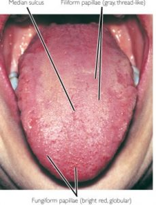 Black Spot On Tongue - Cancer