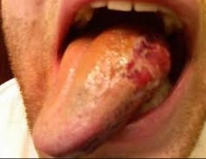 Black Spot On Tongue - Repetitive Tongue Injuries