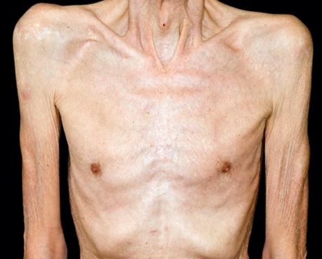 Diabetes Symptoms - Unexplained Weight Loss