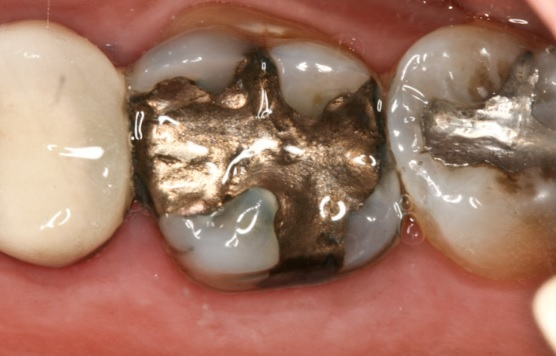 14 Health Risks of Amalgam Fillings (No.13 Terrible)