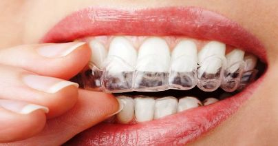 Benefits of Mouthguard for Teeth Grinding – Good or Bad?