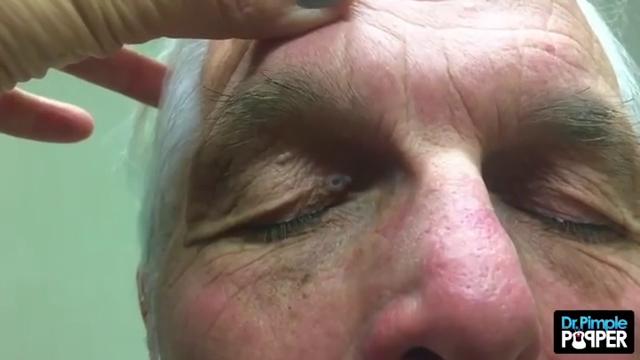 Dr Pimple Popper Whitehead Looks Like A Huge Top Ramen