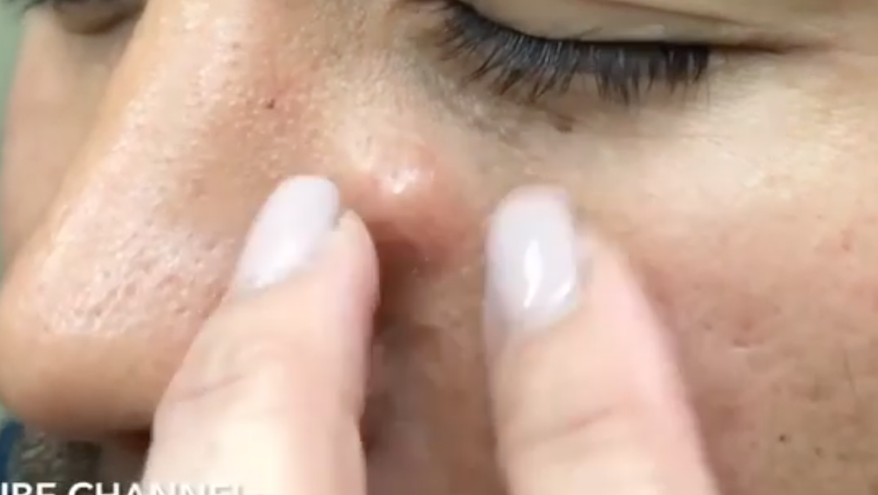 Dr  Pimple Popper -- See The Ear Explosion, How Could This