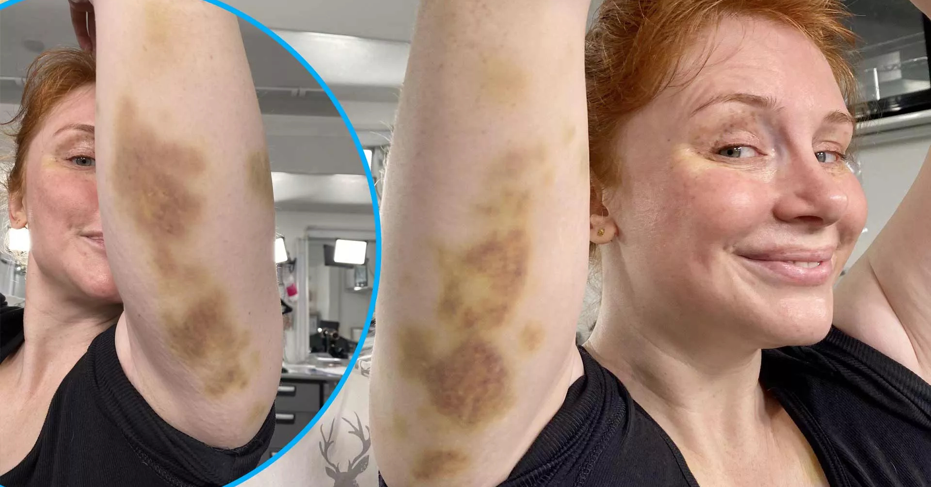 Bryce Dallas Howard Shows Off Gnarly Bruises From Jurassic World Stunts After Pressure From Chris Pratt What's the deal with you. bryce dallas howard shows off gnarly