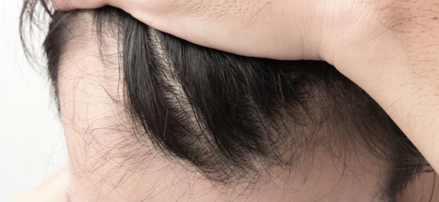 Echo-NHS-Healthcare-Thinning-Hair