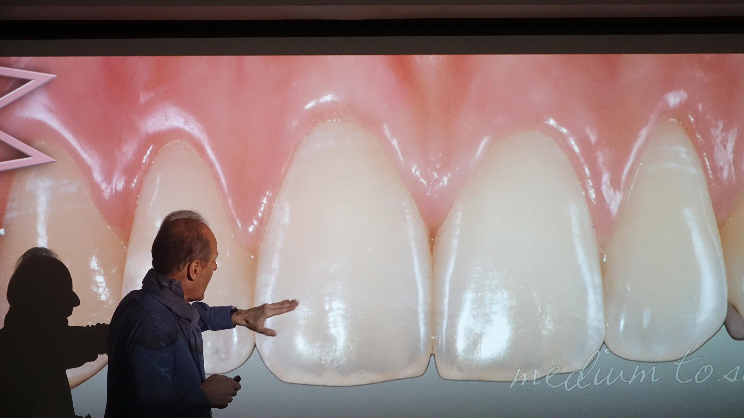 ANTERIOR BIO-ESTHETIC RESTORATIONS - Master Program Modules I & II
