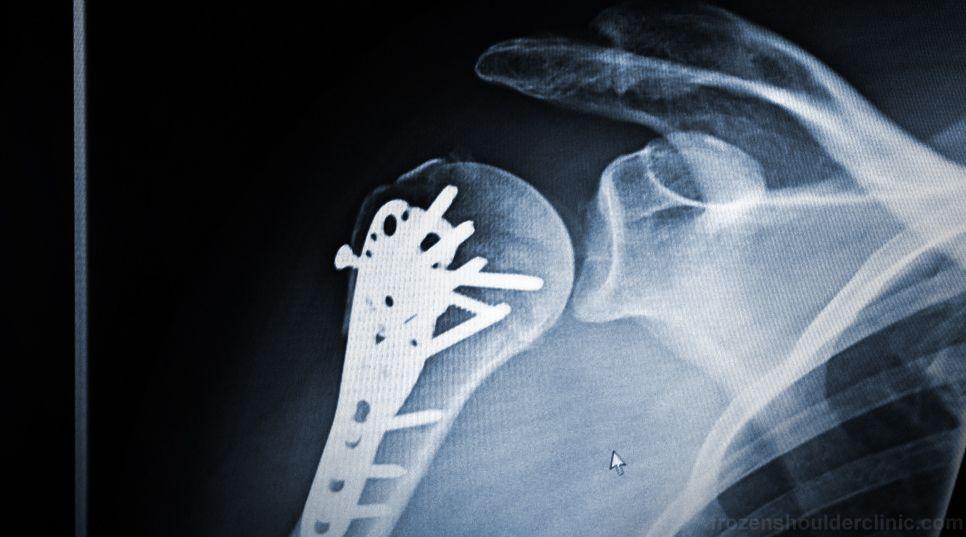 Las prótesis tienen como función sustituir a una parte del cuerpo que se haya perdido.
