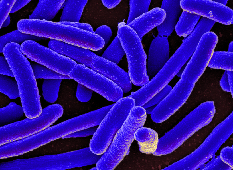 Siderophore-based diagnosis of bacterial infections (20150206)