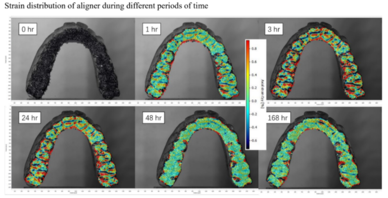 Orthodontic teeth aligners enabling deeper analysis and personalized treatment plans