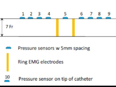 Multifunctional, flexible sensor array for urethral catheters (20140233)