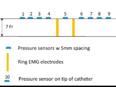 Multifunctional, flexible sensor array for urethral catheters (20140233)