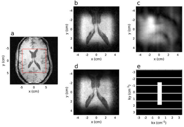 Accelerating MRI data acquisition with segmented 2D pulses